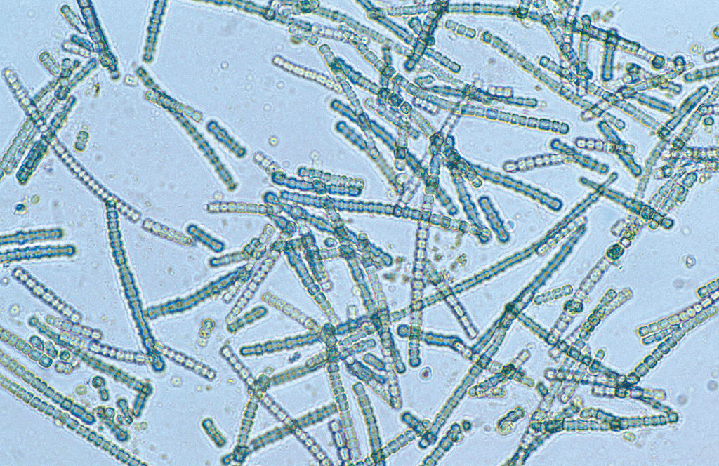 bluegreen algae
